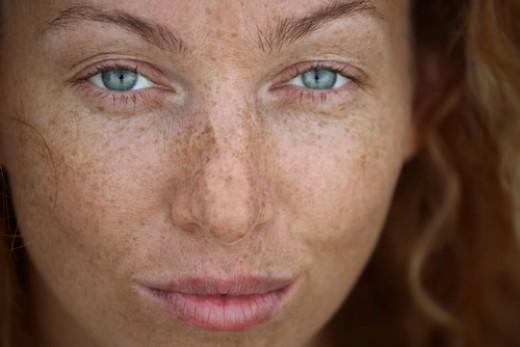 Facial Spots Removal 72