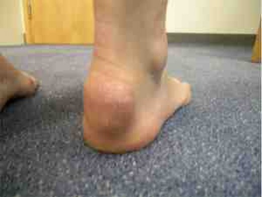 Fluid bump on the Achilles Tendon londonfootandanklecentre.co.uk