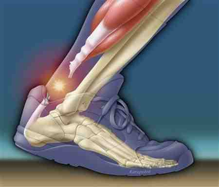 Achilles Tendon scienceblogs.com