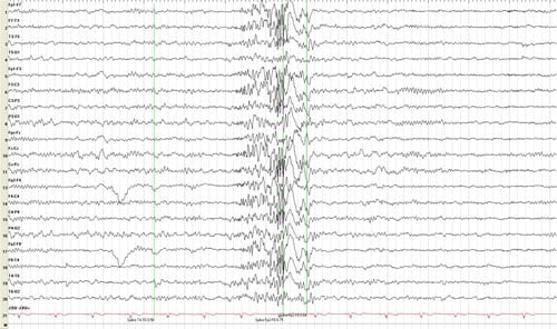 an example of an EEG for an epileptic...not mine.