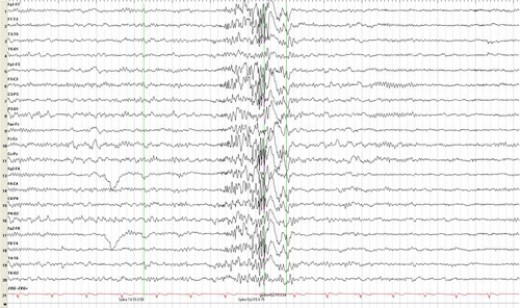 an example of an EEG for an epileptic...not mine.