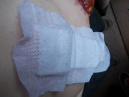 A roadway of bandaging that covers the staples used to secure my post operation incision.