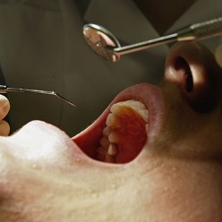 Causes and remedies of toothache