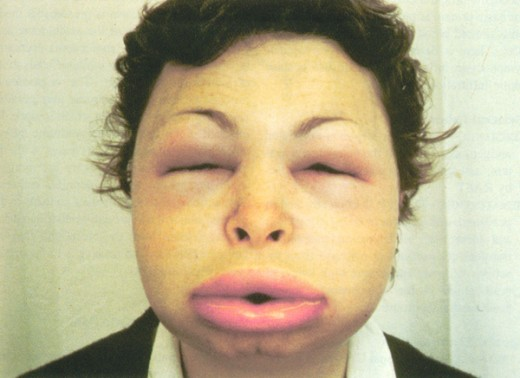present with thick lip and peri orbital swelling ( angioedema )