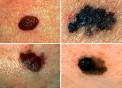 Melanoma and Skin Cancer - What Does Skin Cancer Look Like? Learn Your Moles