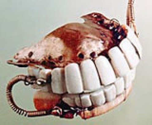 Set of dentures made by John Greenwood for George Washington in 1798