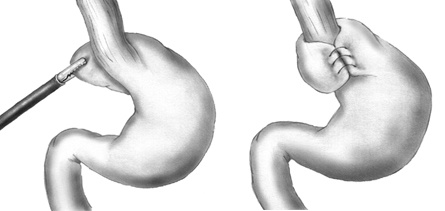 A Nissen Fundoplication wraps the fundus of the stomach around the esophagus to physically prevent food and stomach acid from refluxing.