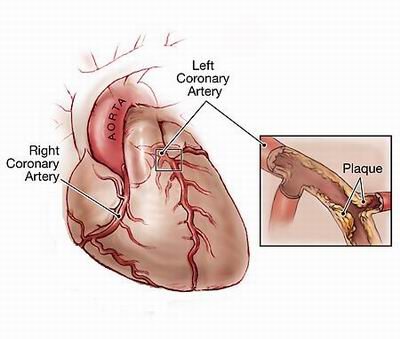 This plaque prevents proper blood flow to the heart.
