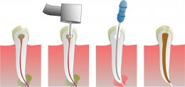 A diagram of a root canal, I don't see paper clips here!