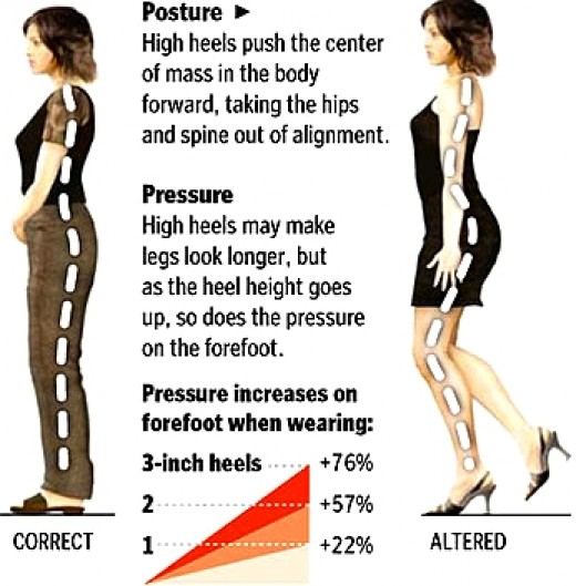 Image result for heeled posture can lead to painful muscle fatigue and strain injuries.