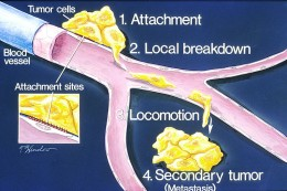 Process of Metastasis. Source: Wikimedia Commons, Public Domain.
