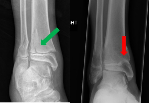 Salter-Harris II fracture (green arrow) and resultant growth arrest with bar (red arrow) 6 months later.