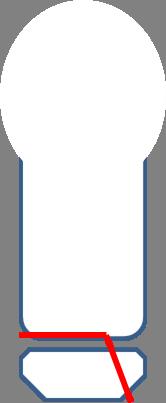 Salter-Harris III