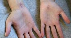 As you can see by the photo-carpal tunnel syndrome is certainly a debilitating disease. It is not only degenerative in nature, but can also require surgical methods to repair the median nerve, responsible for causing carpal tunnel syndrome.
