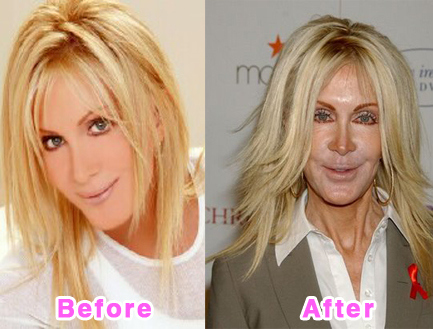 """Knot's Landing"" Actress Joan Van Ark, before and after photos that show a major alteration from  an unsuccessful face-lift"