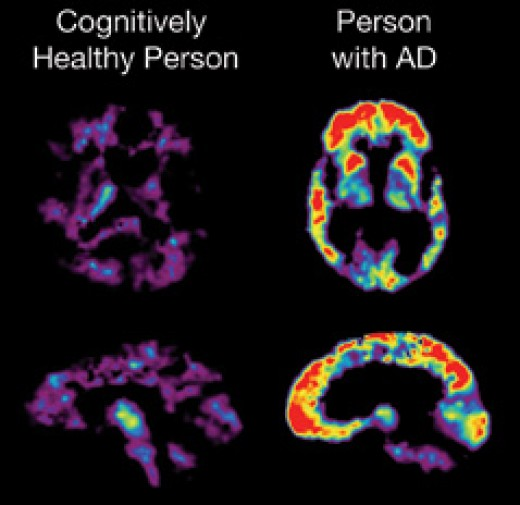 PET scans such as this were used to assay the level of amyloid plaque in the brains of study subjects. Areas in red indicate the presence of plaque deposits.