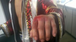 Donaire's bloodied knuckles