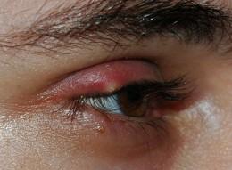 Stye in Eye