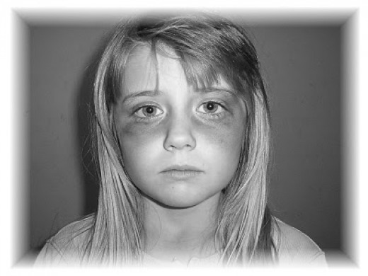 Abused Children