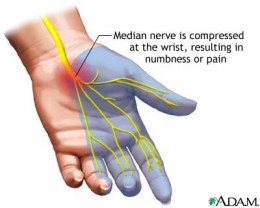 When the Carpal Tunnel is inflamed from irritation, it can put pressure on the Median Nerve that goes through the tunnel.