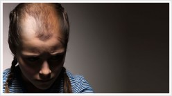 Teen Hair Loss
