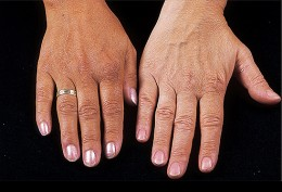 Hyperpigmentation of the right hand