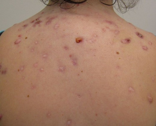 """Acne on the back, usually called """"bacne""""."""