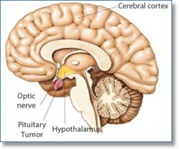 Tuumor on the Pituitary Gland
