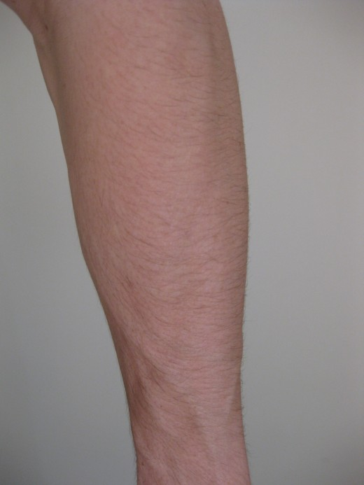 Notice How Many Fewer Veins Appear on the Top of the Forearm