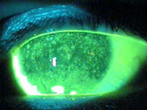Keratitis caused by dry eyes. With fluorescein dye, the micro-abrasions are easily seen.