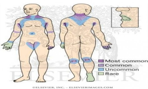 The distribution of Acanthosis Nigricans in the body.