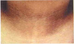 Acanthosis Nigricans in the front of neck.