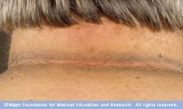Acanthosis Nigricans in the back of neck.