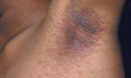 Acanthosis Nigricans in the armpit.