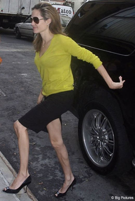 Charity organizers were first alerted to Jolie's needy condition after seeing her Skeletor-like legs and feet.