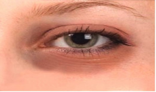 Dark Circles around the eye is another symptom of Bags under eye, commonly in cases of lack of sleep.