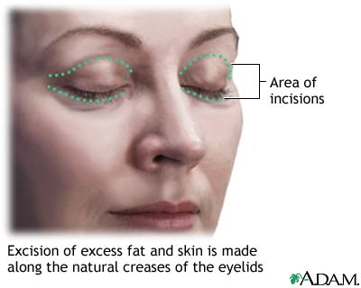 Blepharoplasty or eyelid surgery tighten the skin under the eye by removing the excess skin and fats in the eye region.