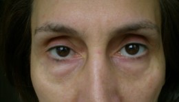 Swelling seen on the skin under the eye together with loose and saggy under-eye skin are common symptoms of Bags under eye.