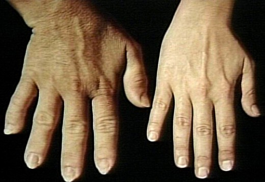 #6: Acromegalic enlargement of hand.