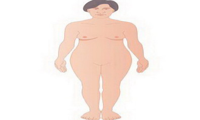 #5: Changes in body appearance associated with Acromegaly.