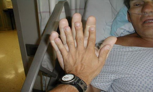 Acromegaly...