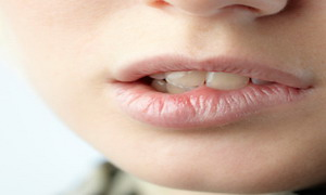 #1: Mouth Dryness is the common symptom of Xerostomia.
