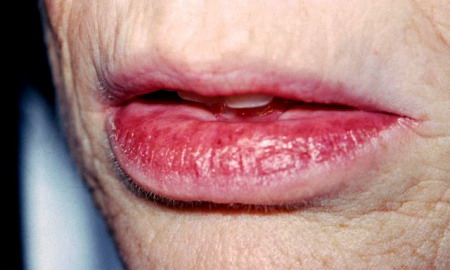 #2: Lip cracking is also common in cases of Dry Mouth.