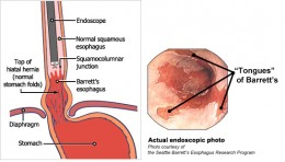 #3: Barrett's Esophagus which is a precancerous change in the structure of the lining of your esophagus.