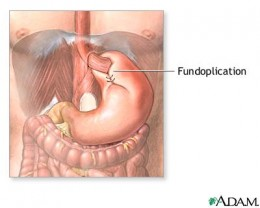 #1: Nissen fundoplication.