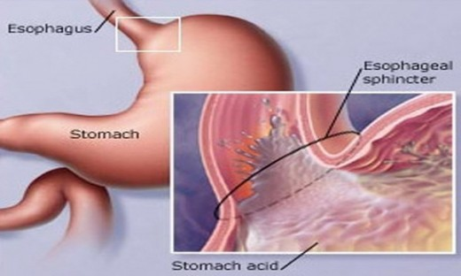 Another illustration of Fundoplication.
