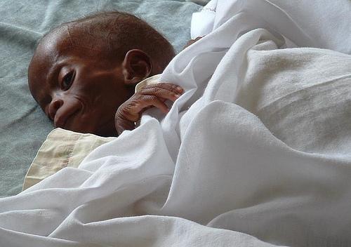 Dieing child at Jinja Children's Hospital