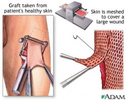 Skin Grafts ~ what is a skin graft ~ Things to aware of when having a skin graft