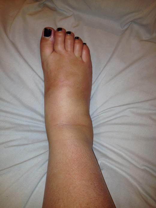 A swollen ankle, foot & toes.
