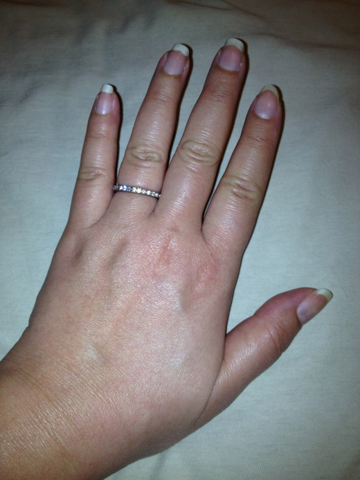 Swollen hands and fingers may make it necessary to buy a fake wedding band.